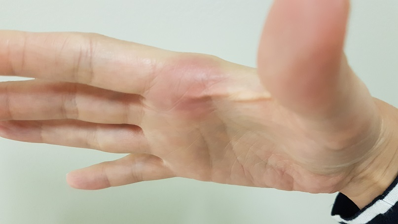 budget epicurean frisbee bruise